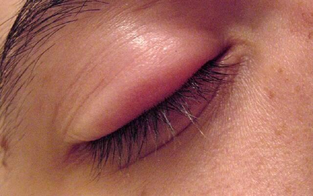 Почему может болеть глаз где веко