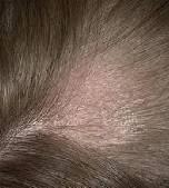 демодекоз головы симптомы