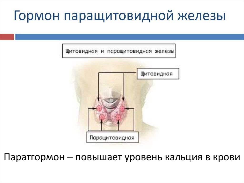 Судороги, мочекаменная болезнь и гипертония – причина в гормонах паращитовидных желез?