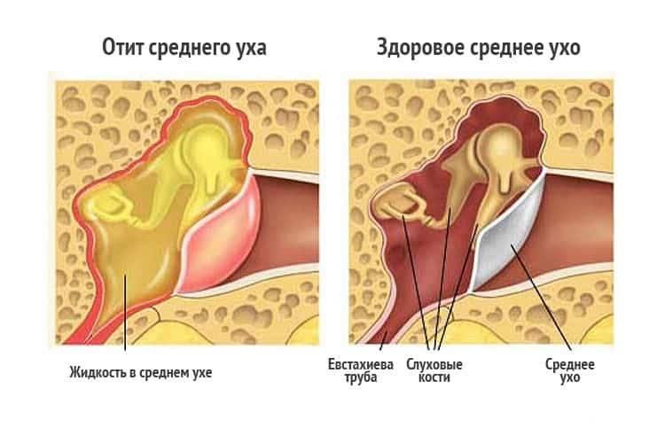 Заложено ухо при насморке, что делать - 4 метода лечения