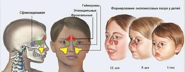 Пневматизация пазух носа: что это значит, причины и лечение