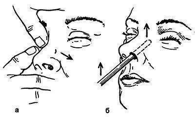 правка носа