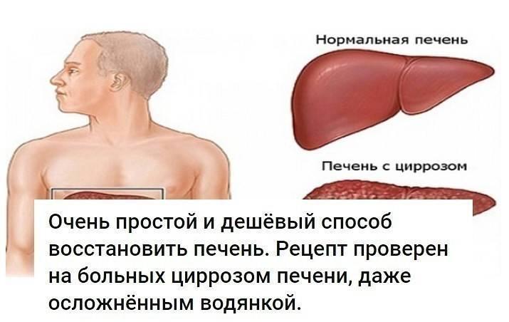 Болит печень после алкоголя принимаем срочные меры