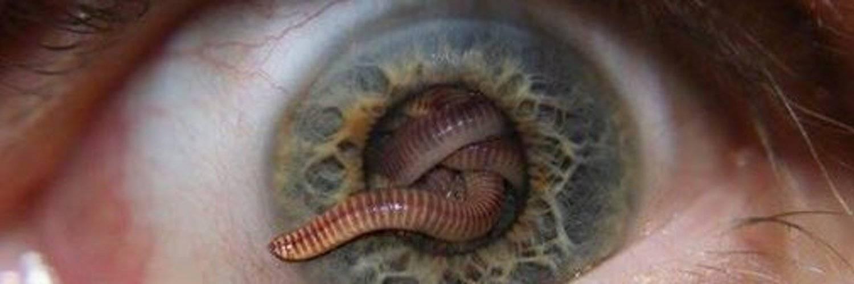 Паразиты в глазах у человека