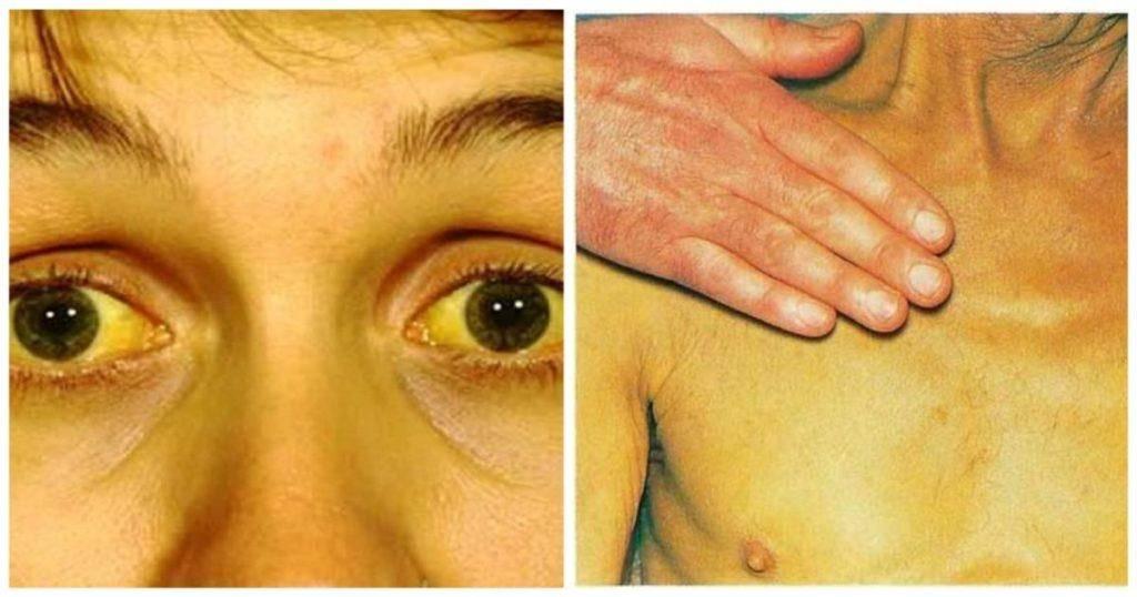 Последствия после желтухи в детстве