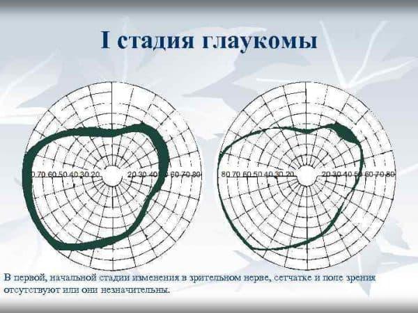 глаукома стадии