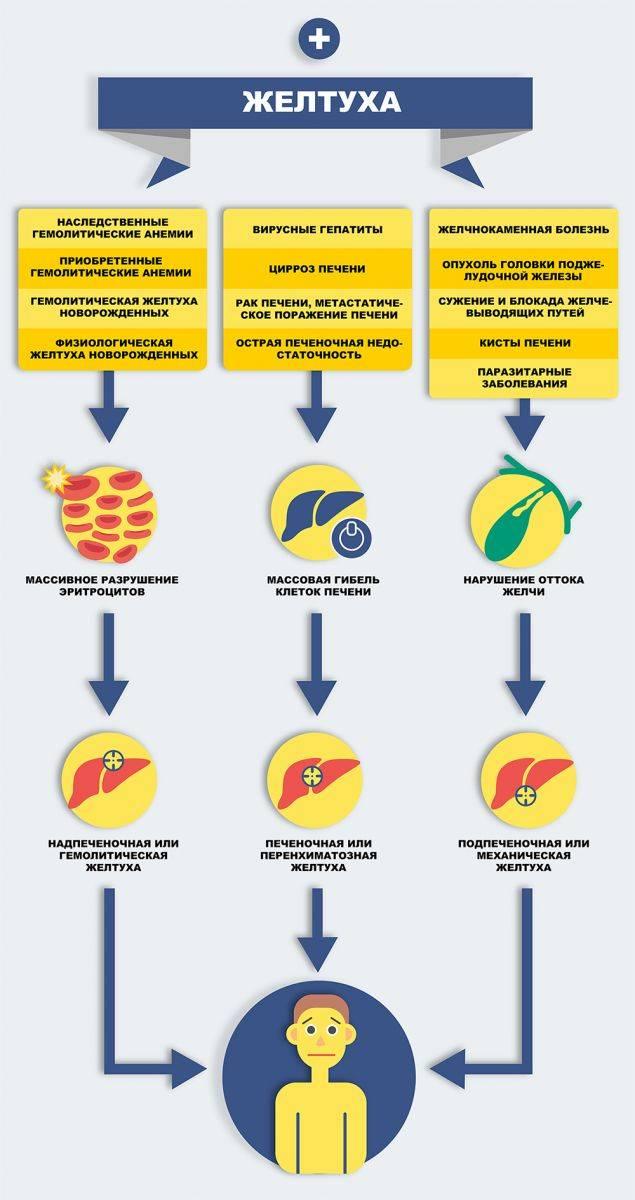 Гемолитическая желтуха: причины заболевания, основные симптомы, лечение и профилактика
