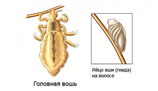 Уксус от вшей и гнид: рецепт, как избавиться от вшей с помощью уксуса