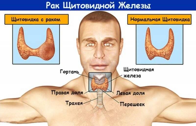 Рак щитовидной железы у женщин: причины, симптомы и лечение