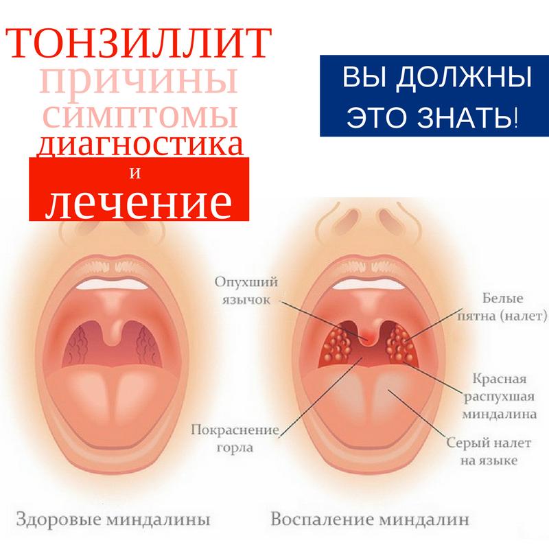 Как долго болит горло при ангине