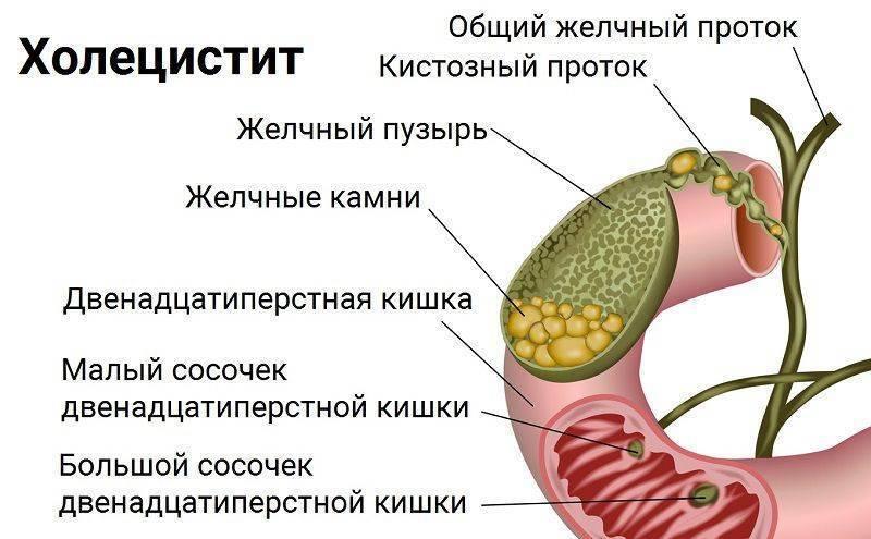 какие симптомы если болит желчный пузырь