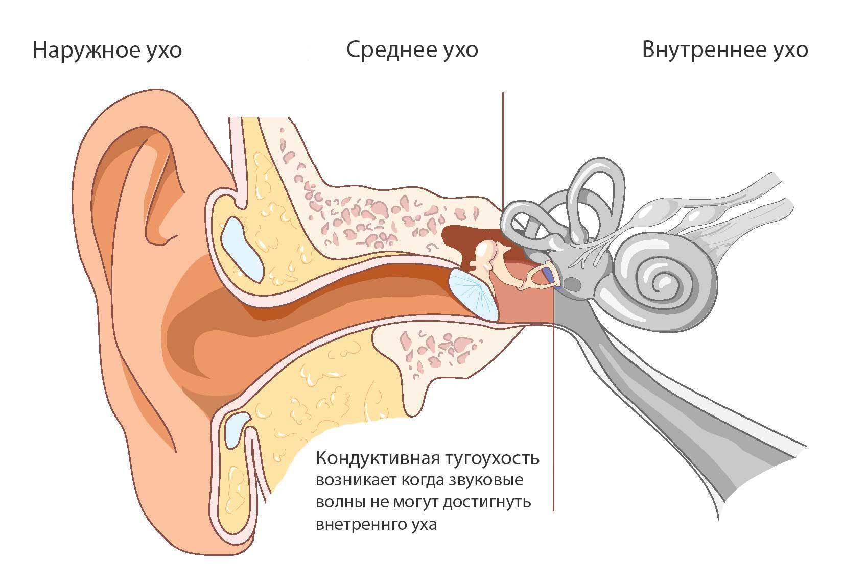 Кондуктивная тугоухость степени лечение