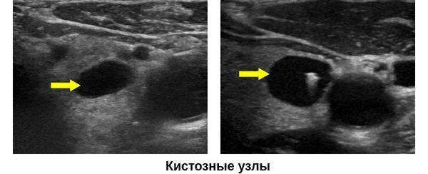 киста перешейка щитовидной железы