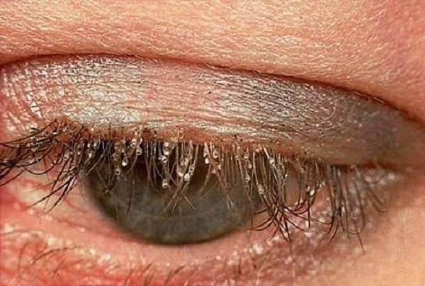 Демодекозный (клещевой) блефарит: лечение, симптомы, народные рецепты