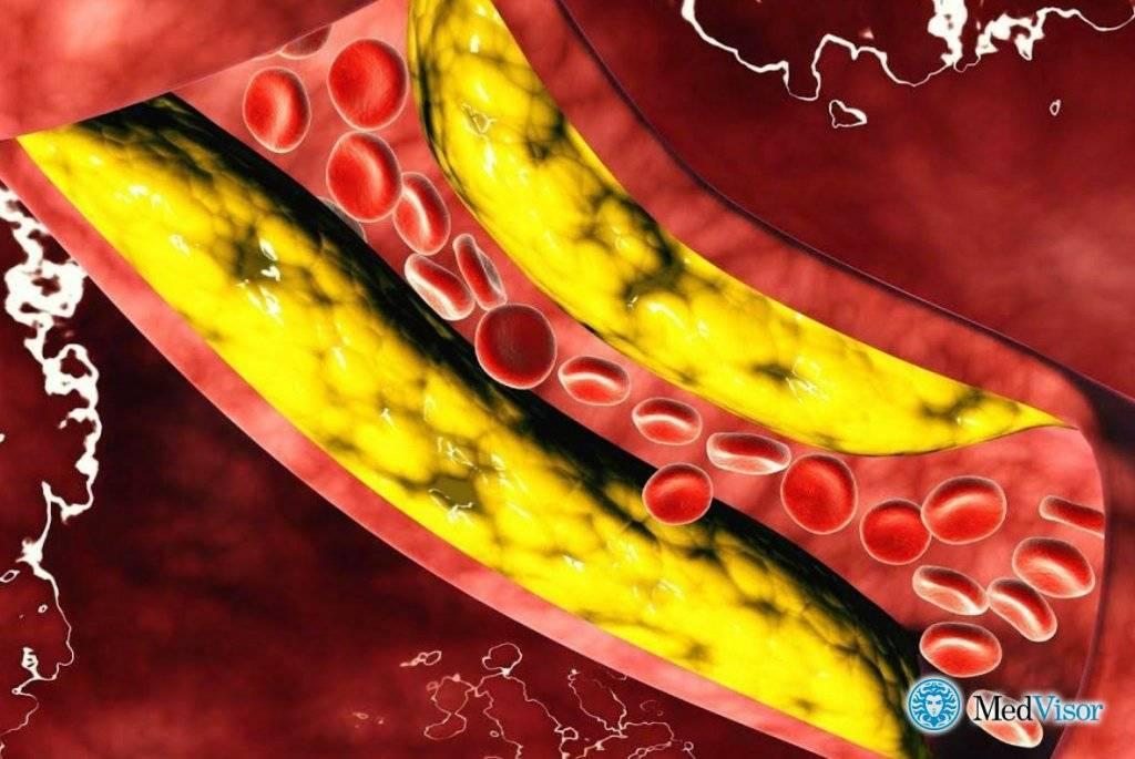 чем грозит высокий холестерин