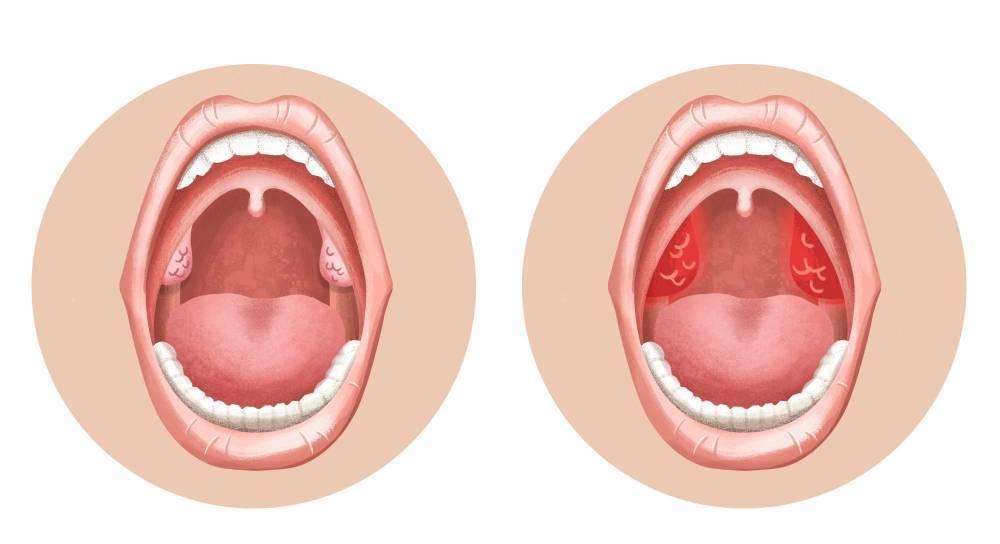 Хронический тонзиллит у ребенка: причины, симптомы, диагностика, профилактика