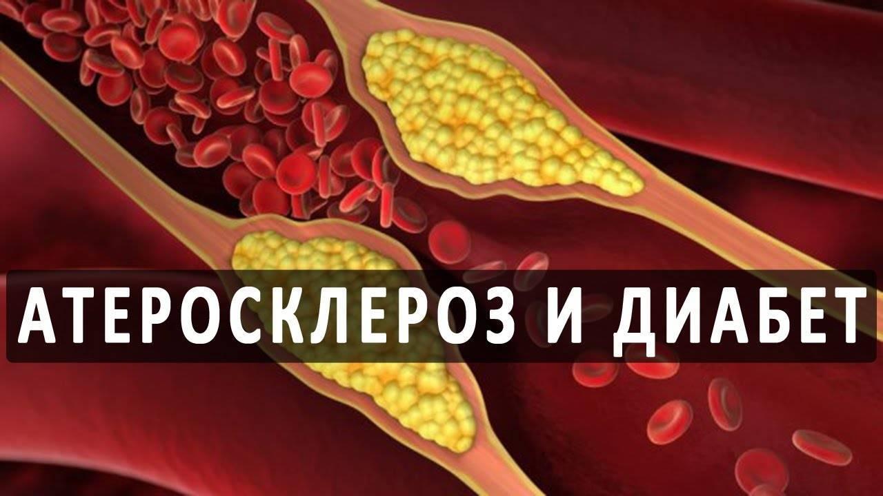 Облитерирующий атеросклероз артерий нижних конечностей— неоцененная опасность присахарномдиабете | медичний часопис