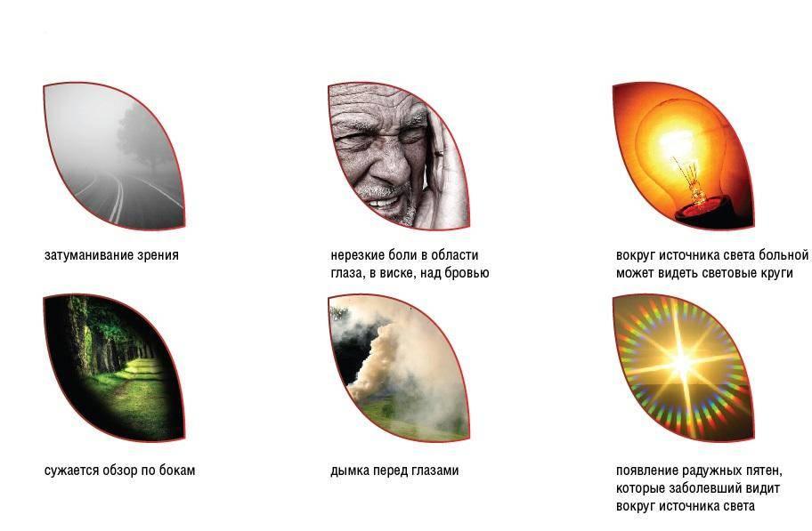 Лечится ли глаукома без операции: современные методы лечения