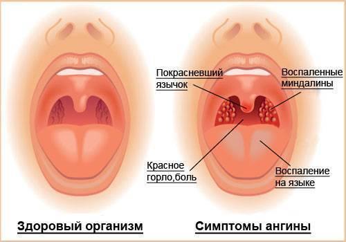 Герпетическая ангина у детей лечение доктор комаровский