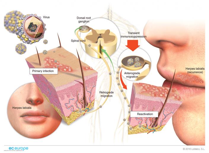Связь онкологии и герпеса