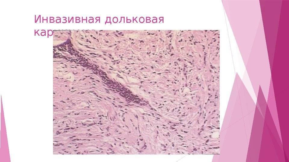 Инвазивный рак молочной железы что это такое — ooncologiya