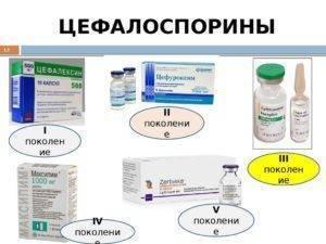Лечение ангины антибиотиками – какими лечить тонзиллит: левофлоксацин, ципрофлоксацин