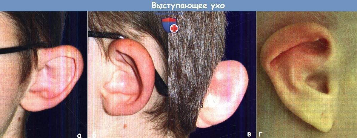 Боль вокруг ушной раковины. кто в зоне риска