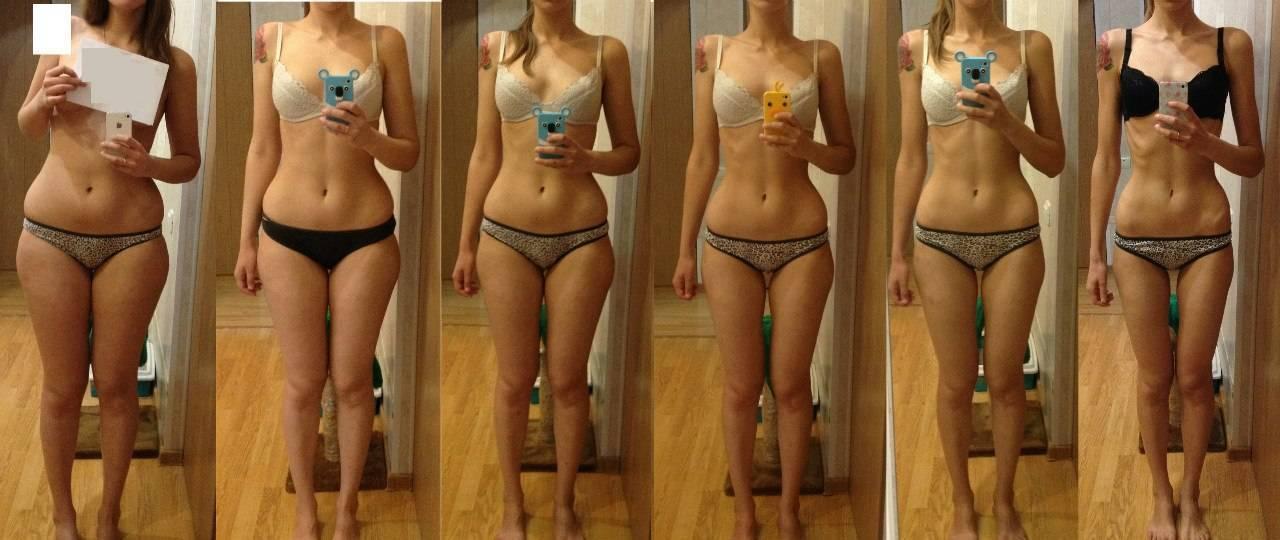 первая стадия анорексии