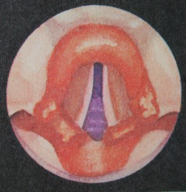 туберкулез глотки