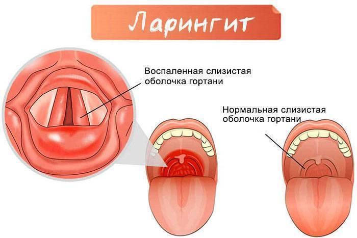 Хронический ларинготрахеит