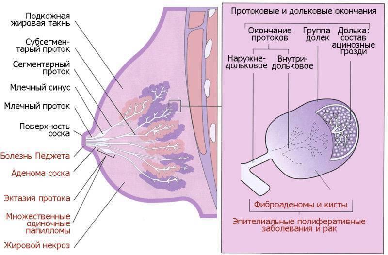 Фиброаденома молочной железы: что это такое, как ее лечить