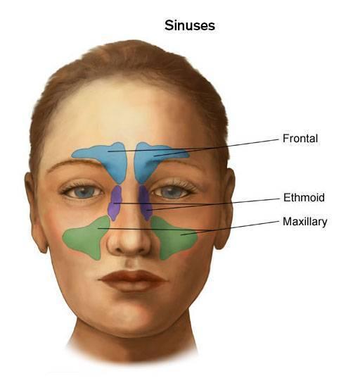 Фронтит – симптомы и лечение у взрослых всех форм воспаления лобных пазух