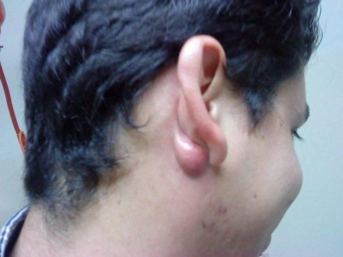 Как убрать шарик в мочке уха?