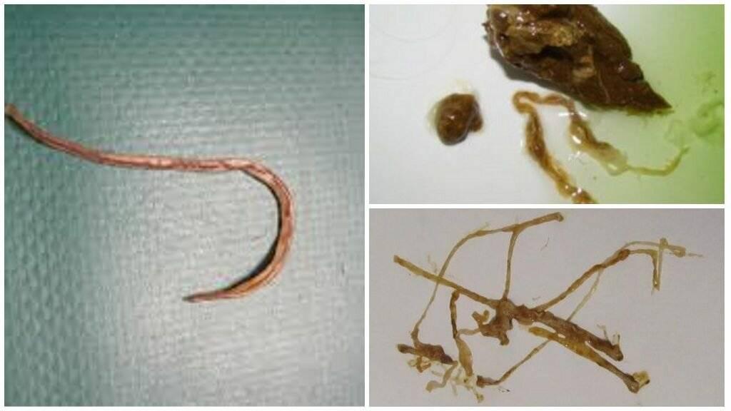паразиты в кале
