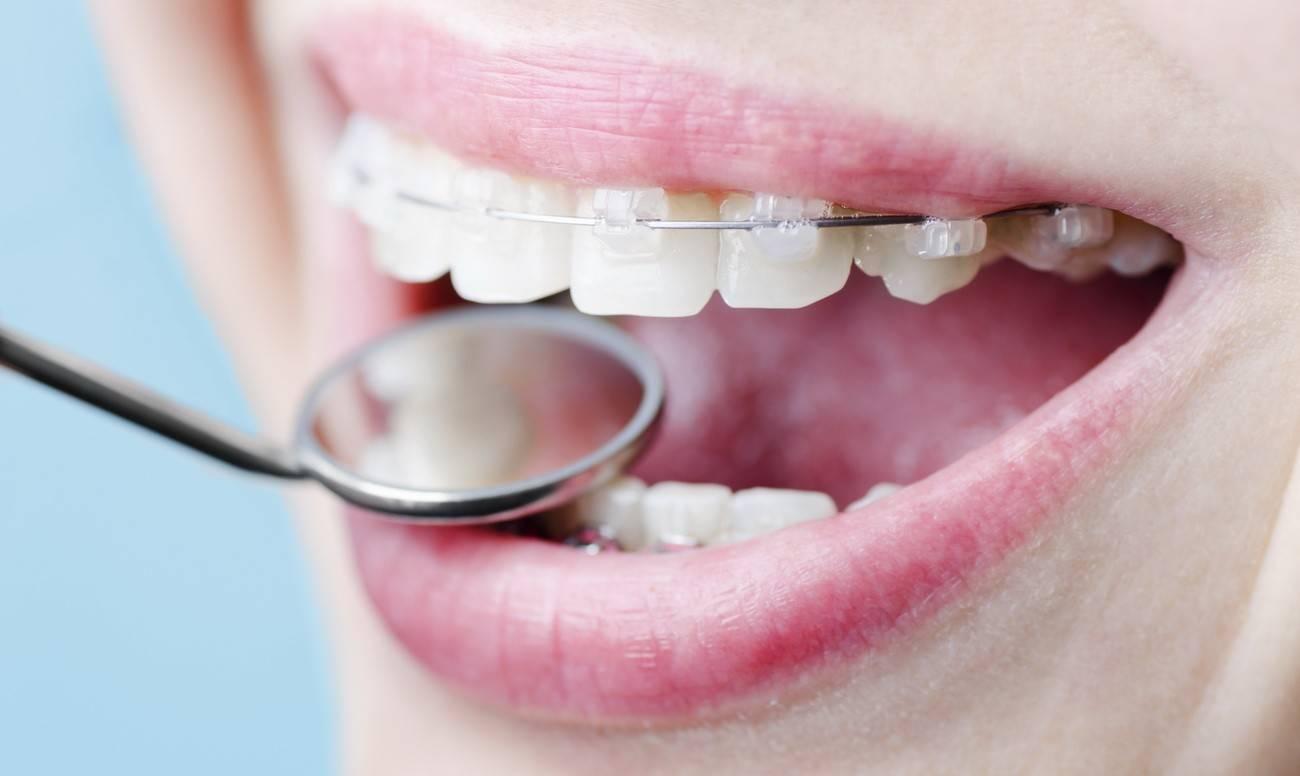 коренные зубы растут криво что делать