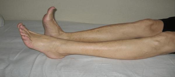неврит малоберцового нерва симптомы и лечение