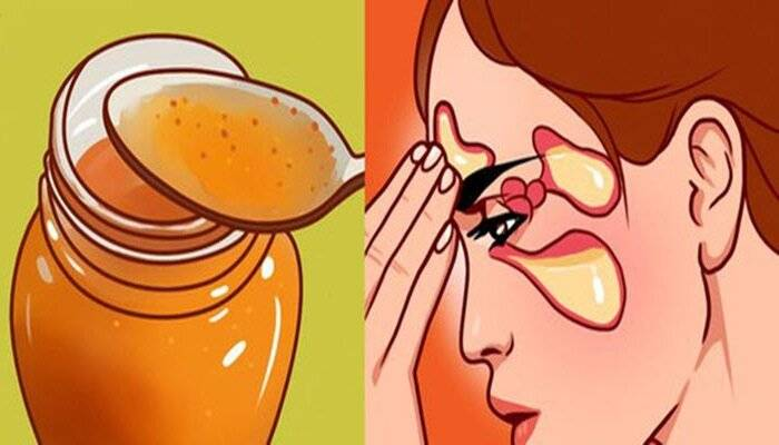 Рецепт от гайморита: сода, мед и растительное масло