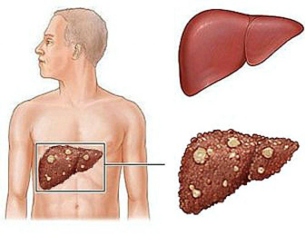 Рак печени, карцинома печени – признаки и симптомы, прогноз выживаемости