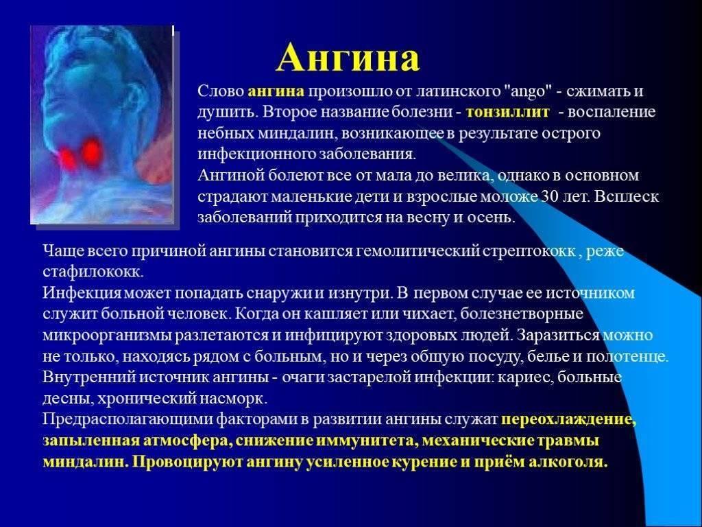Причины и профилактика ангины у взрослых и детей
