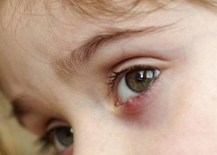 Простуда под глазом!!!! - герпес на веке фото - запись пользователя виктория (milashus) в сообществе все о красоте - babyblog.ru