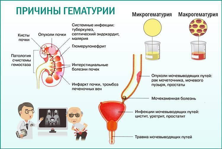 Лечение цистита с кровью в моче