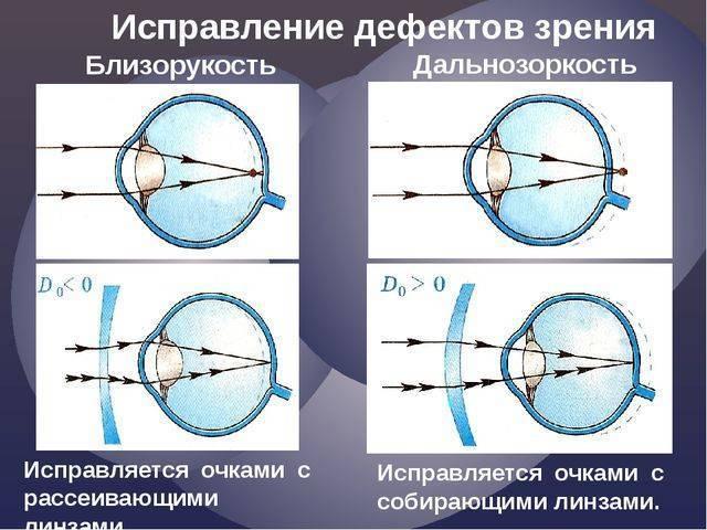 Операция на глаза при близорукости (миопия): как исправить