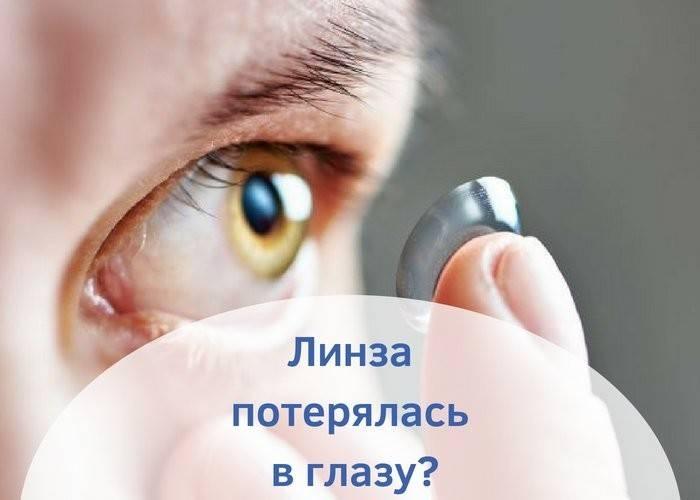 что делать если линза застряла в глазу