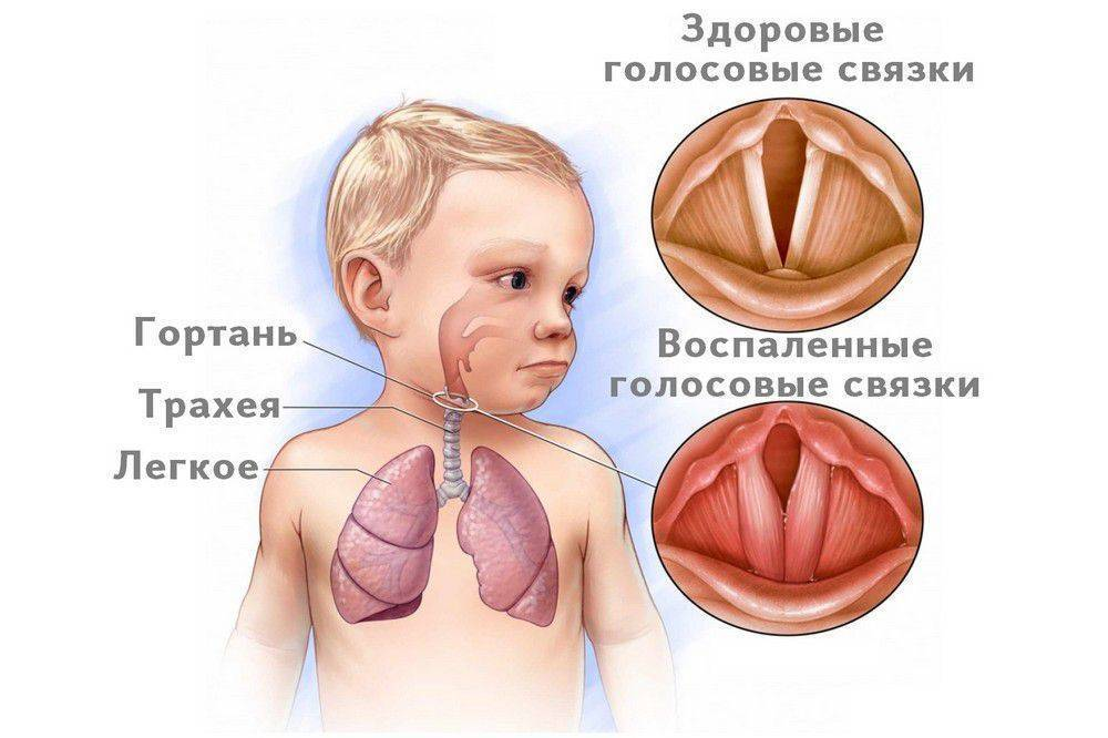 осип голос у грудничка причины комаровский