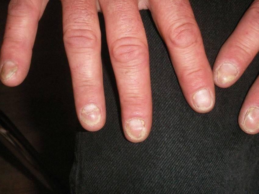 Фото и лечение псориаза ногтей традиционными и народными средствами