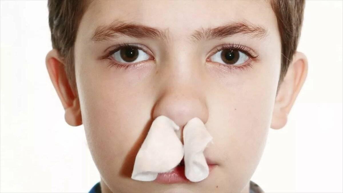 признаки носового кровотечения