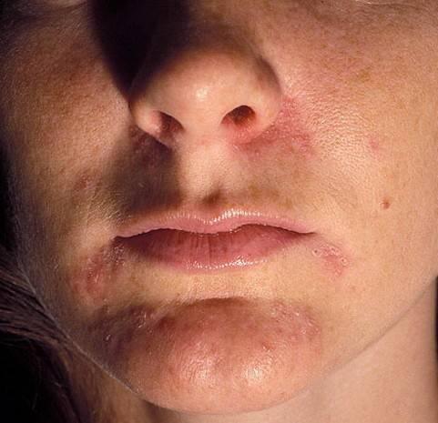Пероральный дерматит на лице: лечение, симптомы и признаки