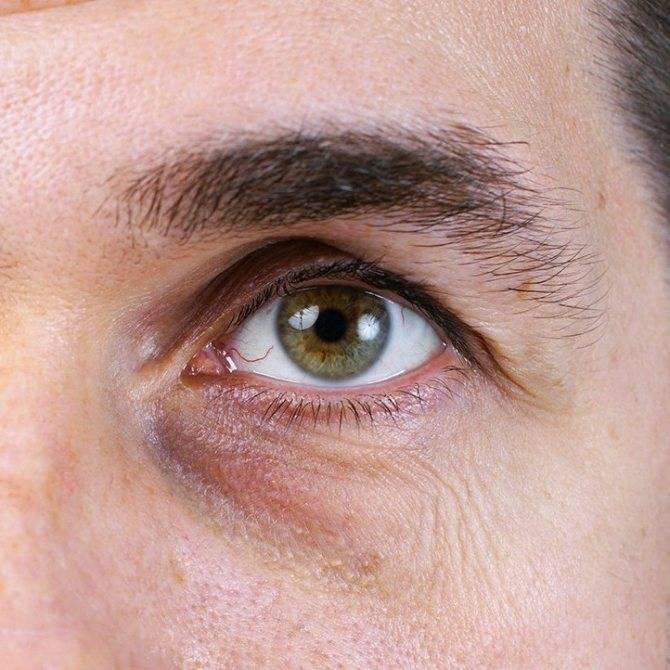 Глаз весь красный и слезится что делать. глаз слезится и покраснел