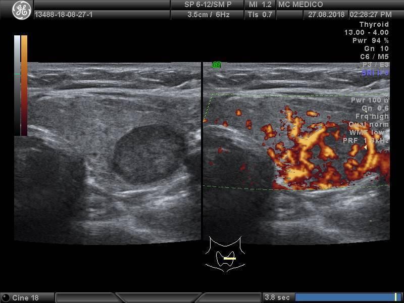 коллоидный узел щитовидной железы лечение