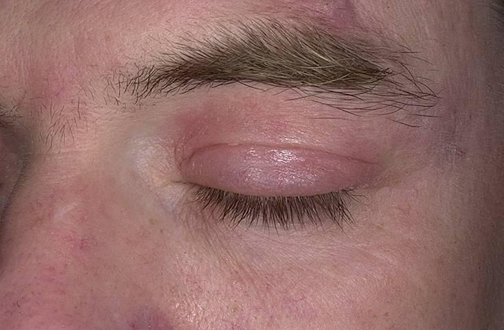 псориаз глаз
